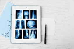 Radiologia Digital